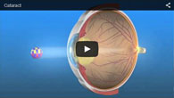Cataract treated by ECVA Eye Care
