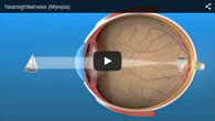 Myopia (Nearsightedness) treated by ECVA Eye Care