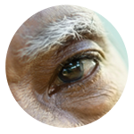 Cataract surgery performed by Eye Care & Vision Associates, Buffalo, NY